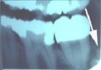 X-Ray of Dentigerous Cyst