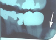 X-Ray showing Dentigerous Cyst