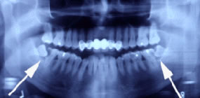 Panorama X-Ray showing impacted molars.
