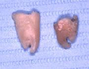 Third molars that have been extracted.