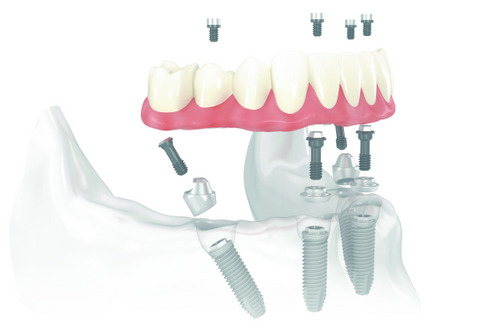 All on four dental implant illustration