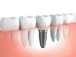 Dental implants have a high success rate, because the implant fuses with the bone.